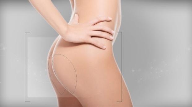 cuánto duran los implantes de glúteos