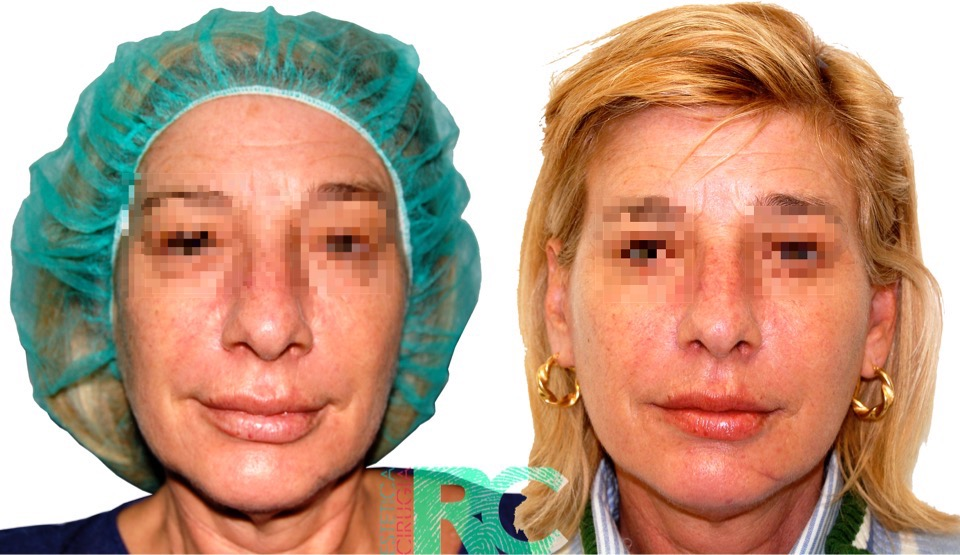 LIFTING FACIAL MADRID