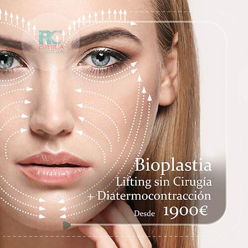 bioplastia-diatermocontraccion