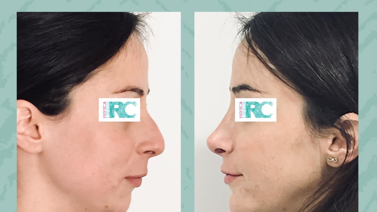 rinoplastia rc